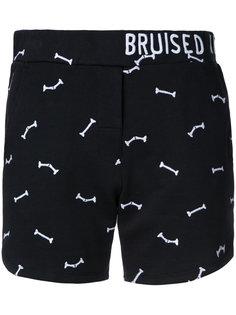 """шорты """"Bruised Not Broken"""" Zoe Karssen"""